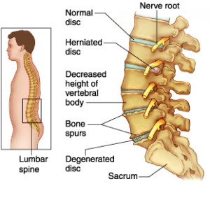 Back Pain treatment in Ayurveda