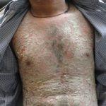 Psoriasis Patient