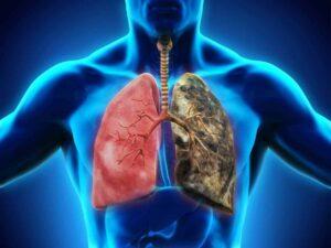 Lungs Detox
